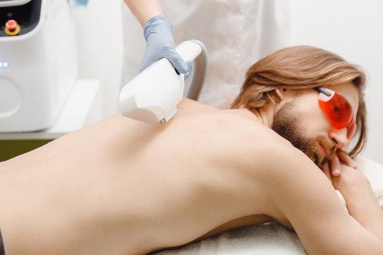 Man depilation laser hair removal back procedure treatment