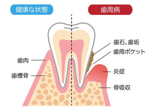 歯周病と健康な歯 断面図