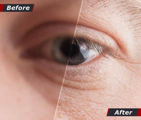 Technological concept, one hundred percent recovery of vision. Contact lenses. Good vision. Before and after. Copy space