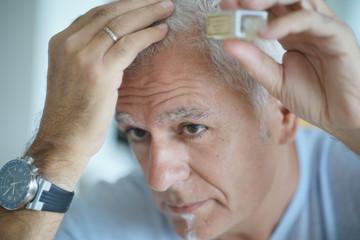 Senior man treating hair loss