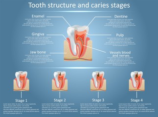 Vector tooth structure diagram and dental caries stages