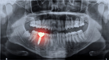 Panoramic dental x-ray image mouth of adult man and single dental implant with crown attached used for tooth replacement, with indicated with painful area