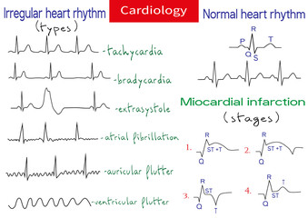 Normal and pathological ecg collection.
