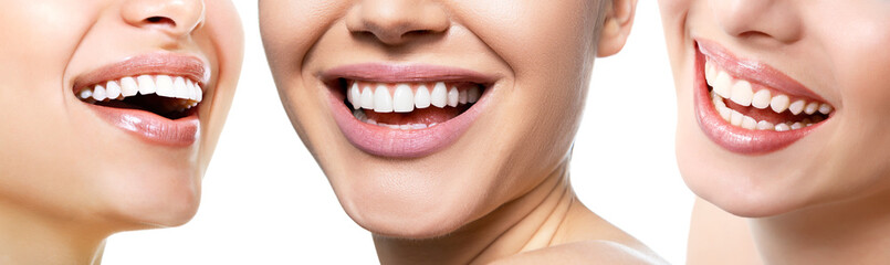 Beautiful wide smile of young fresh women with great healthy white teeth, isolated over white...