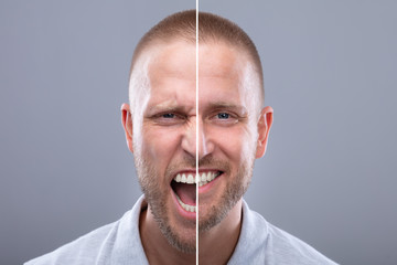 Man's Face Showing Anger And Happy Emotions