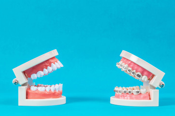 Compare tooth model and tooth model with metal wire dental braces.