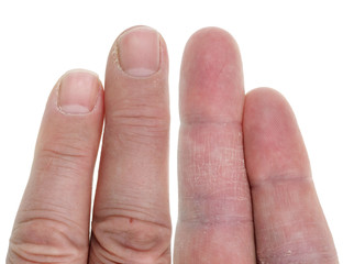 Older elderly people have dry and sore skin on fingers. Isolated