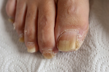 Toenail deformity and neglected feet in the elderly