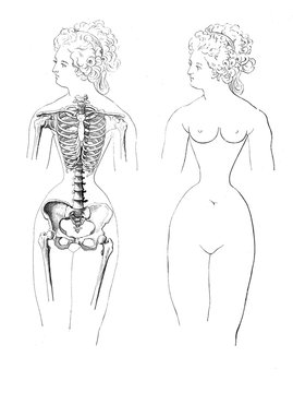 Vintage illustration of anatomy, ribcage female deformation, due to the fashionable use of corset