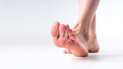 Close up dirty feet isolated grey background
