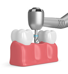 3d render of teeth with dental drill