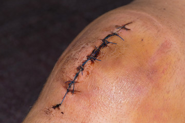 Male knee after meniscal surgery with medical suture