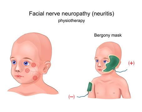 physiotherapy Bergony mask