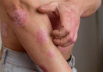 Obraz the man on the arm and abdomen spots psoriasis - fototapety do salonu