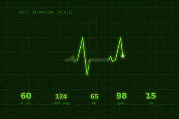 A graph of normal heartbeat on a green monitor
