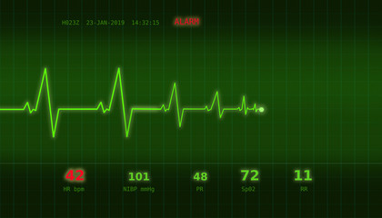 Graph of abnormal heartbeat on a green monitor with an ALARM signal
