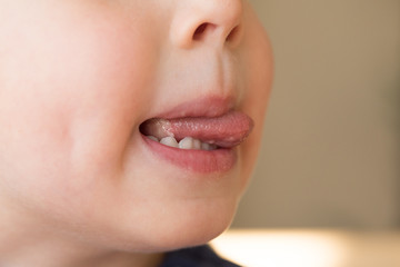 Close-up of Little kid boy with Aphtha or Stomatitis or canker on tongue in his mouth