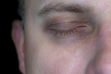 Dunkle Augenringe als Zeichen von Müdigkeit und Erschöpfung