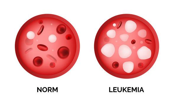 Infographic image of leukemia, lukemia or leukaemia isolated