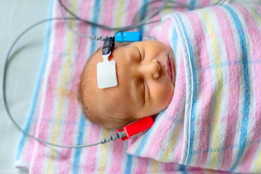 hearing test of a sleeping newborn at hospital