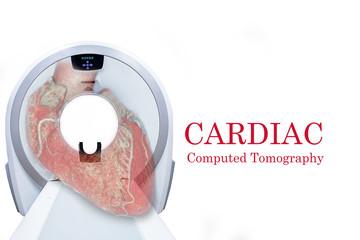 CTA Coronary artery  3D rendering image. Cardiac CT for heart disease .