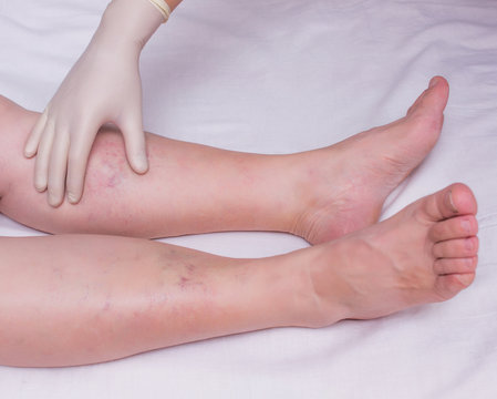 Doctor examines the patient's legs for the presence and degree of varicose veins in the legs, close-up, white background, phlebeurysm woman, hand