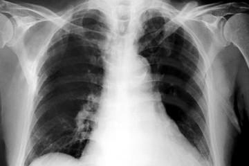image of x-ray film
