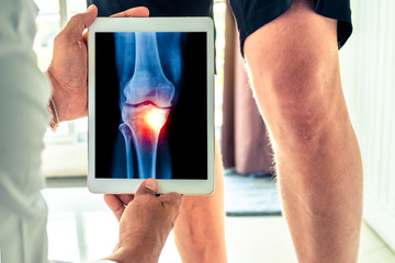 Doctor holding a digital tablet with x-ray of knee of the patient