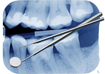 Dentalspiegel und Sonde vor Röntgenbild mit Zähnen