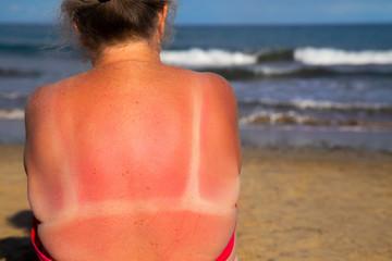 Mature woman in a bikini with sunburn on her shoulders