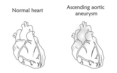 Ascending aortic aneurysm. Damaged and normal heart muscles. Anatomy flat illustration. Outline image, white background.