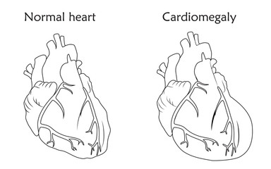 Cardiomegaly. Enlarged and normal heart muscles. Anatomy flat illustration. Outline image, white background.