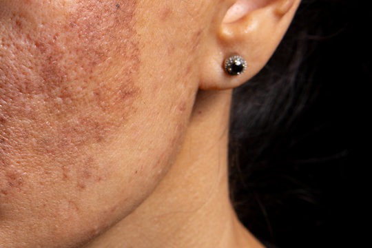 Age spots and increased skin pigmentation