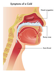 A medical illustration of the the upper respiratory tract of a person with the symptoms of a common cold.