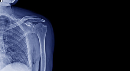 x-ray image and banner design of shoulder in blue tone