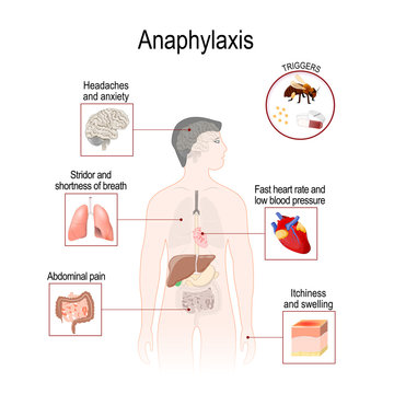 Anaphylaxis is a serious allergic reaction that may cause death