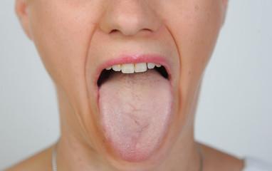 mund frau mann mensch schlechte zähne zunge