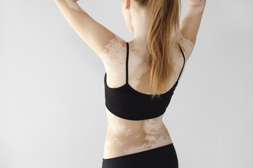 People, lifestyle, health, dermatology and auto immune disease concept. Rear view of unrecognizable woman with slim body wearing black underwear, doing hair, demonstrating white vitiligo spots