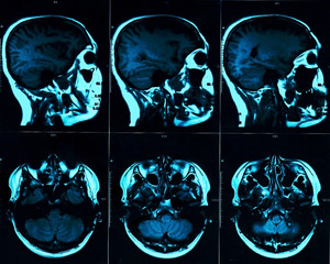 Magnetic resonance scan of the brain with skull. MRI head scan on dark background blue color. X-ray medicine and medication concept
