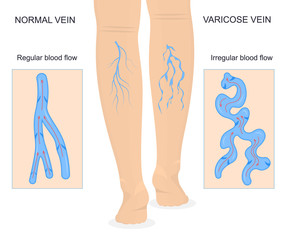 Varicose Veins Concept Banner Card with Elements. Vector