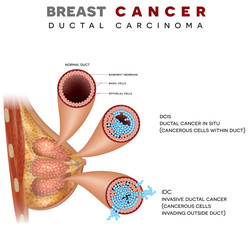Breast cancer anatomy illustration, Ductal carcinoma