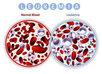Leukemia Infographic Image