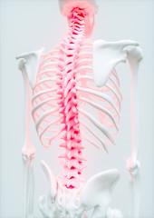 Aching Spine - upper limb bone - 3d rendering