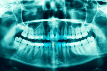 Woman x-ray of the teeth wisdom teeth horizontal pozition problem dentistry medicine. Panoramic image of teeth