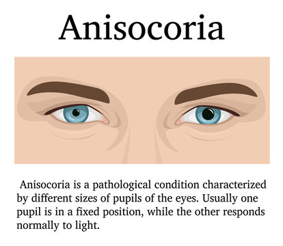 Illustration of Anisocoria
