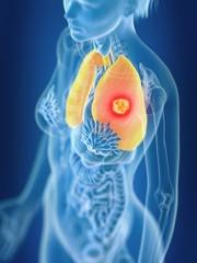 Illustration of female lung cancer