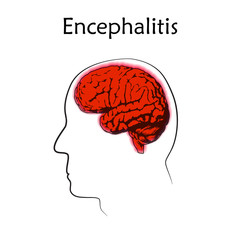 Encephalitis. Vector medical illustration. White background, line silhouette of head, anatomy flat image of brain.