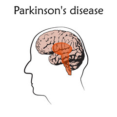 Parkinson's disease poster, banner. Vector medical illustration. White background, line silhouette of old man head, anatomy flat image of damaged human brain.