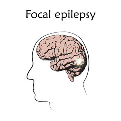 Focal epilepsy. Vector medical illustration. White background, line silhouette of man, anatomy flat image of brain, electrical discharge.
