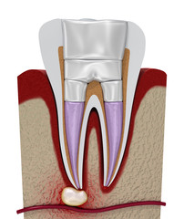 Dental fillings procedure diagramm . 3D illustration